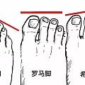 你是什么脚