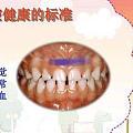 请问个问题:牙龈和牙齿连着的那个筋,磕破了,看外科还是口腔科?